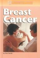 Diseases and Disorders - Breast Cancer (Diseases and Disorders) by Don Nardo
